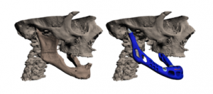 lower-jaw-3d-printed3